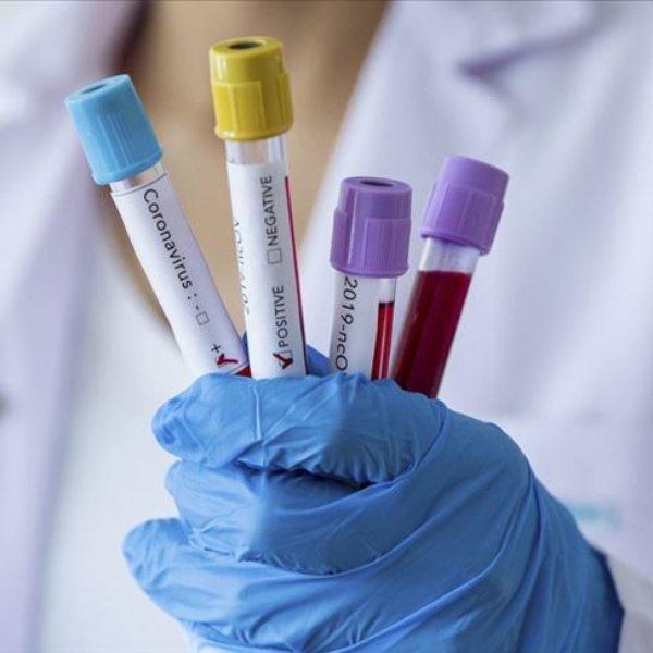Amerika Birleşik Devletleri Novavax'a aşı geliştirmesi için 1.6 milyar ödeyecek
