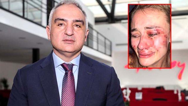 Kültür ve Turizm Bakanı Ersoy, Çeşme'de darp edilen ünlü model için bizzat devreye girdi